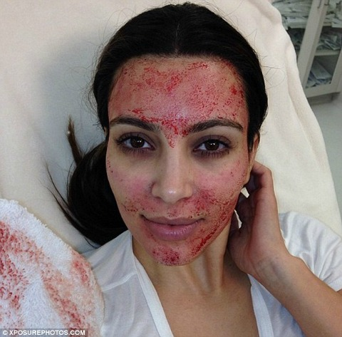 Kim Kardashian after her PRP Facial - otherwise known as the vampire facial - which Simcoe Health offers